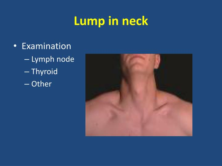 Lump in neck