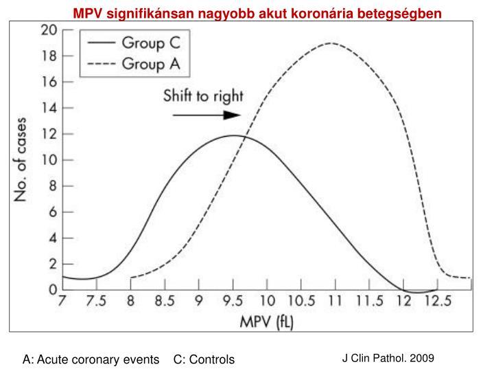 MPV signifikánsan nagyobb akut koronária betegségben