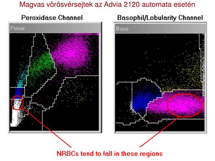 Magvas vörösvérsejtek az Advia 2120 automata esetén