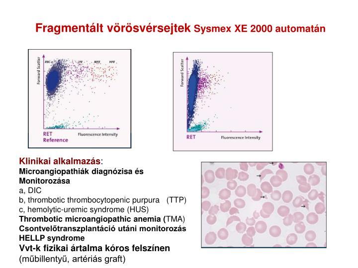 Fragmentált vörösvérsejtek