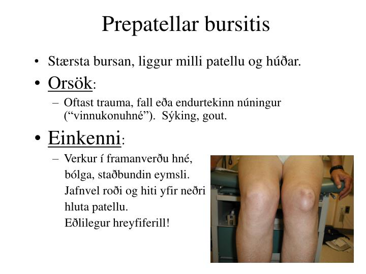 Prepatellar bursitis