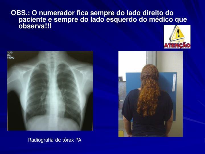 OBS.: O numerador fica sempre do lado direito do paciente e sempre do lado esquerdo do médico que observa!!!
