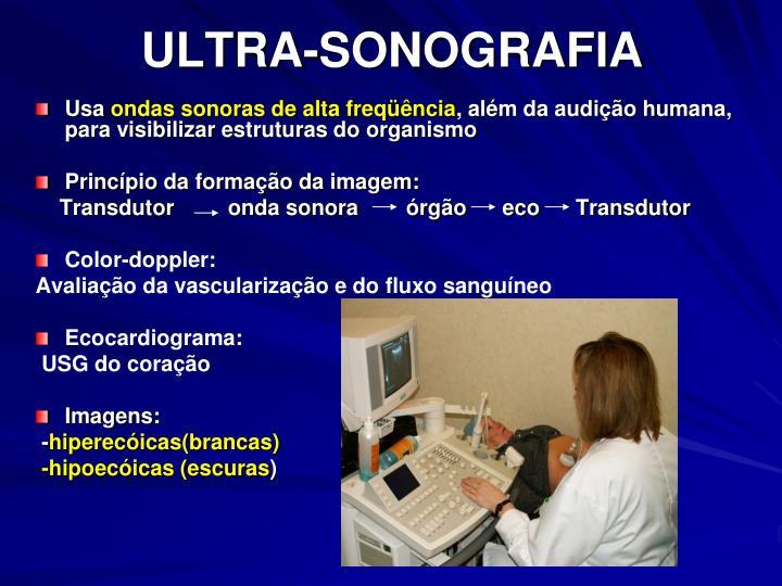 ULTRA-SONOGRAFIA