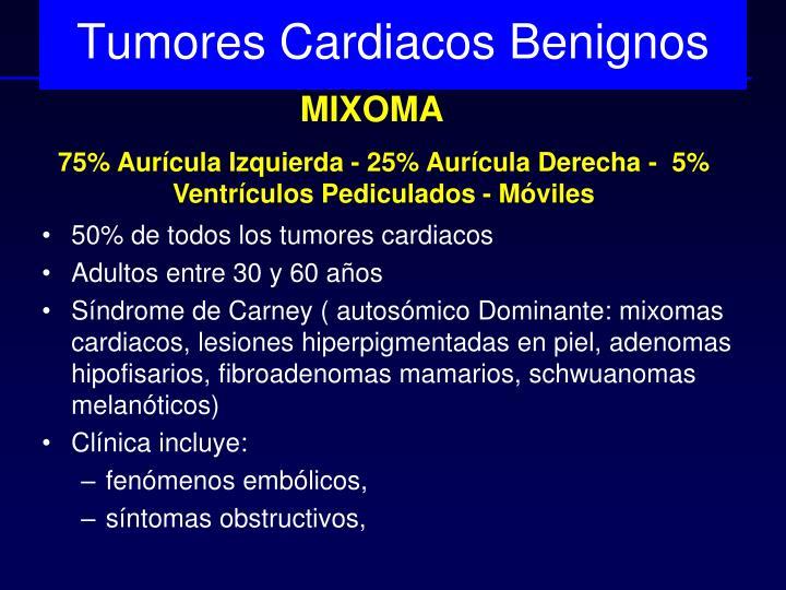 Tumores Cardiacos Benignos