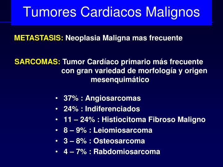 Tumores Cardiacos Malignos
