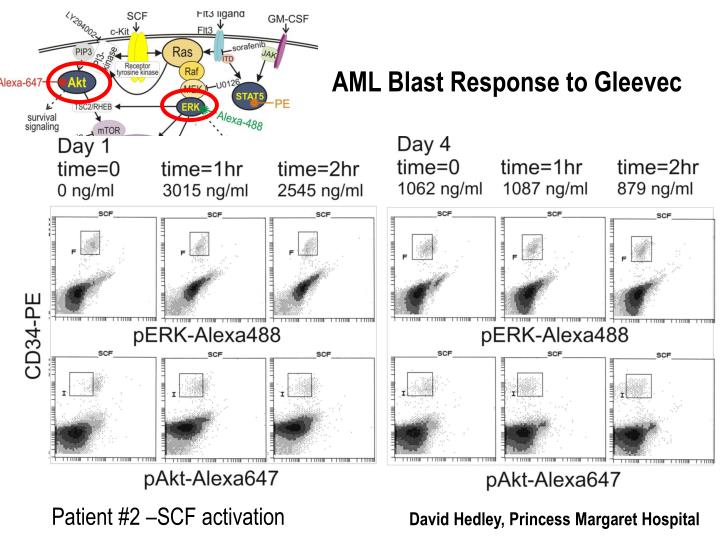 AML Blast Response to Gleevec