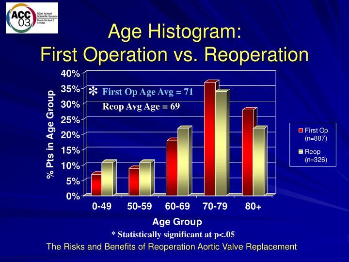 Age Histogram: