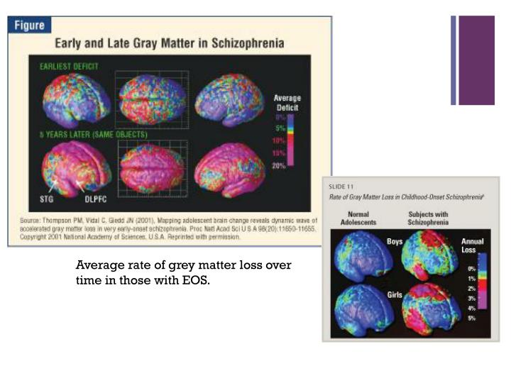Average rate of grey matter loss over time in those with EOS.
