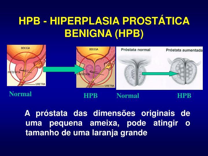 HPB - HIPERPLASIA PROSTÁTICA BENIGNA (HPB)