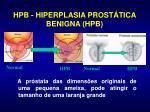 hpb hiperplasia prost tica benigna hpb