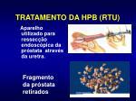 tratamento da hpb rtu
