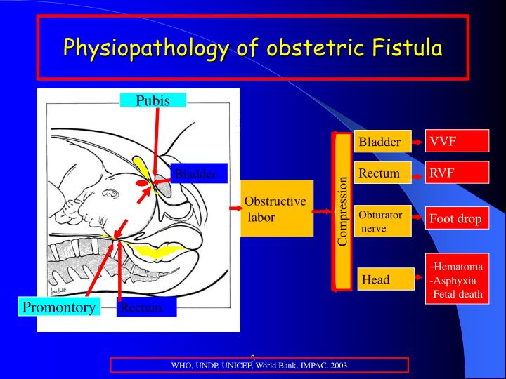 Physiopathology of obstetric fistula