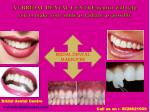 at bridal dental centre dentist will help you to make your smile as radiant as possible