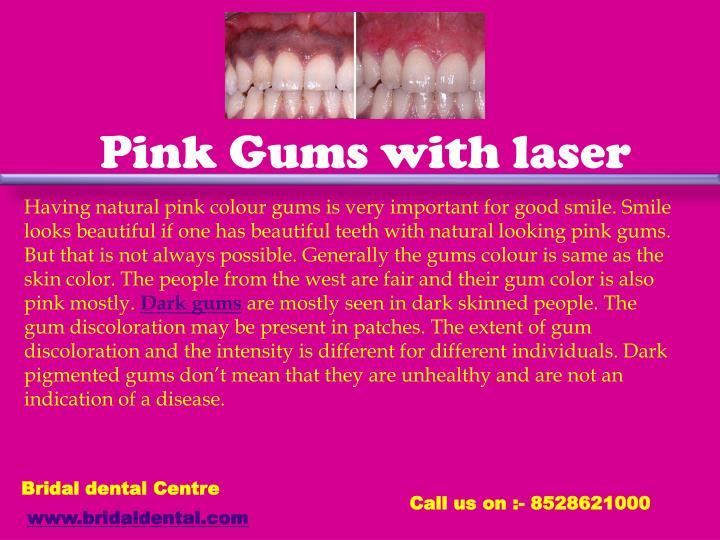 Pink Gums with laser