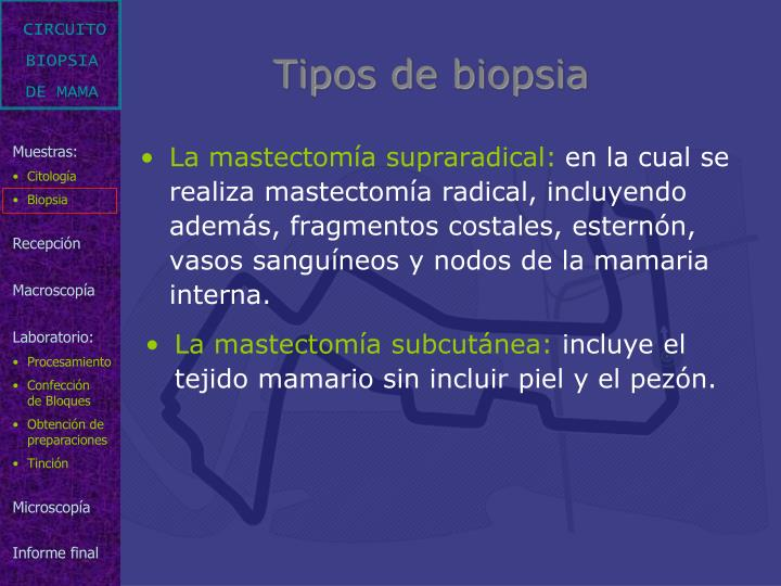 Tipos de biopsia