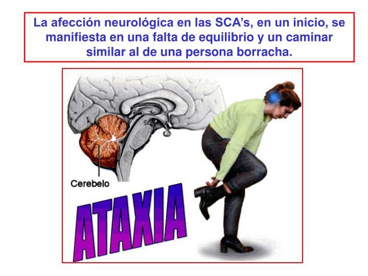 La afección neurológica en las SCA's, en un inicio, se manifiesta en una falta de equilibrio y un caminar similar al de una persona borracha.
