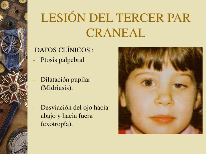 LESIÓN DEL TERCER PAR CRANEAL