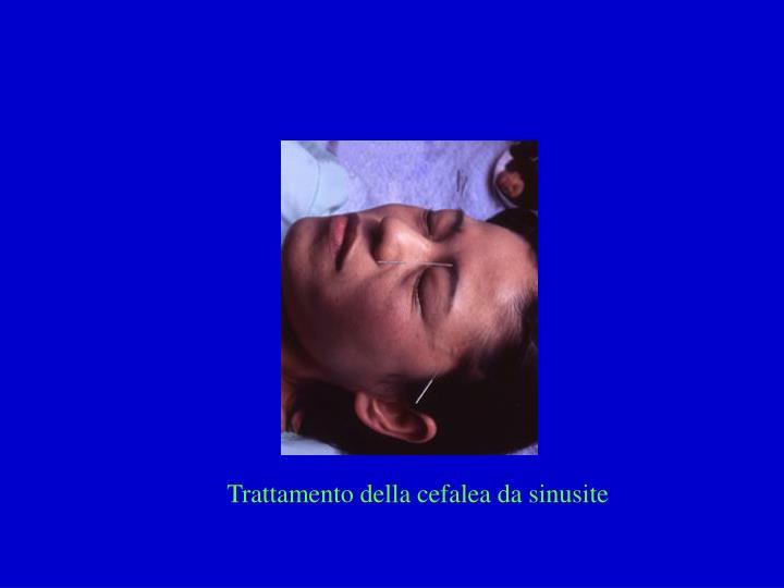 Trattamento della cefalea da sinusite