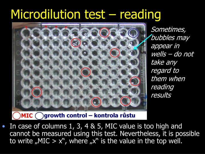 Microdilution test – reading