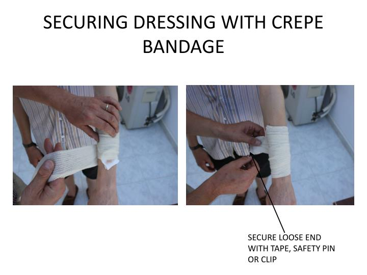SECURING DRESSING WITH CREPE BANDAGE
