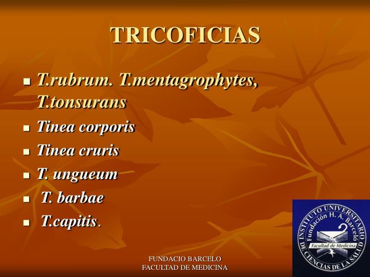 TRICOFICIAS