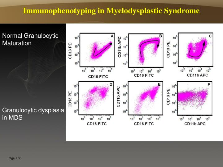 Immunophenotyping in Myelodysplastic Syndrome