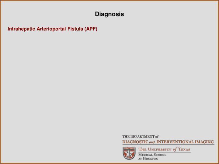 Intrahepatic Arterioportal Fistula (APF)