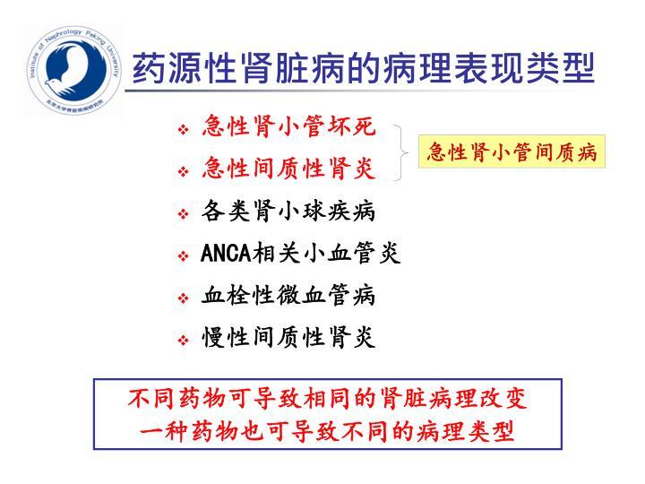 药源性肾脏病的病理表现类型