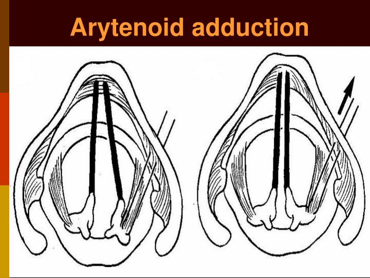 Arytenoid adduction
