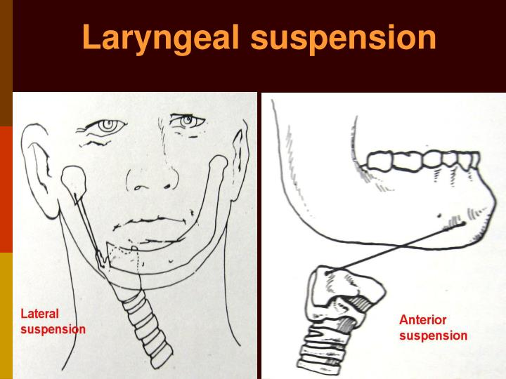 Laryngeal suspension