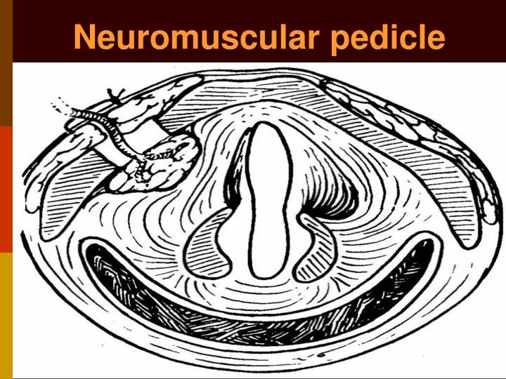 Neuromuscular pedicle
