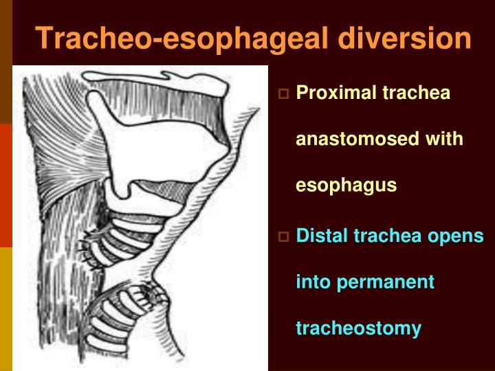 Tracheo-esophageal diversion