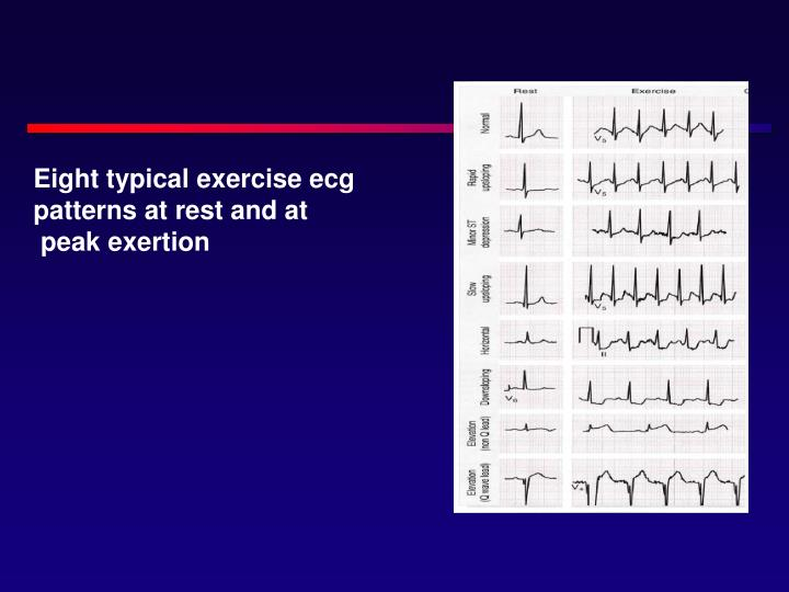 Eight typical exercise ecg patterns at rest and