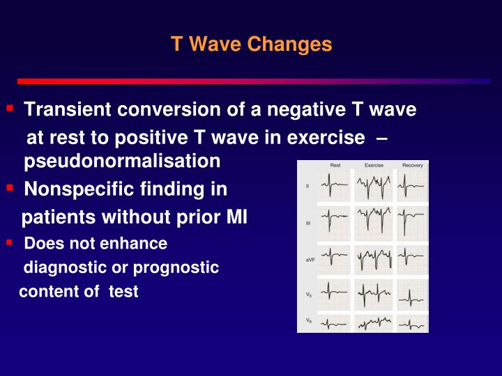 T Wave Changes