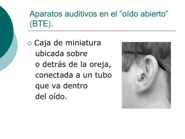 """Aparatos auditivos en el """"oído abierto"""" (BTE)."""