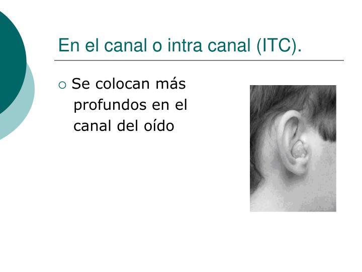 En el canal o intra canal (ITC).