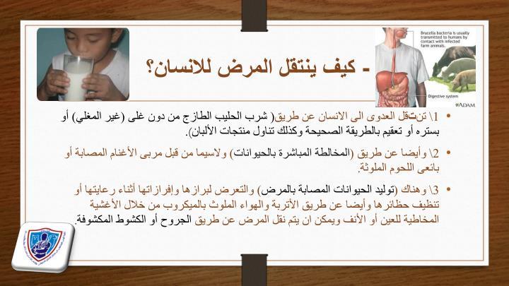 - كيف ينتقل المرض للانسان