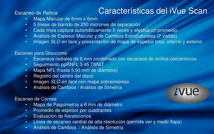 Características del iVue Scan