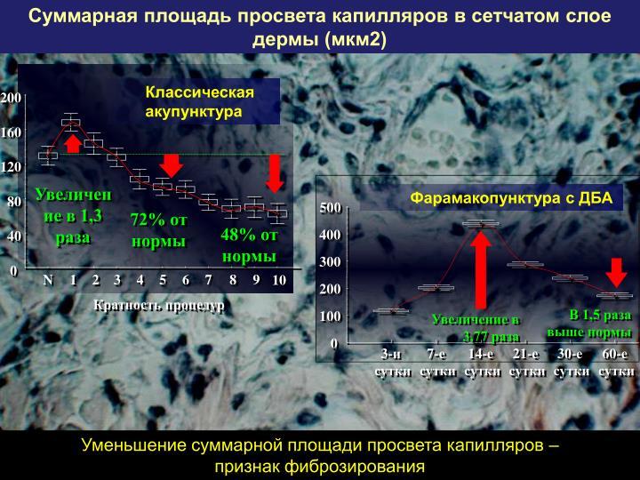 Суммарная площадь просвета капилляров в сетчатом слое дермы (мкм2)