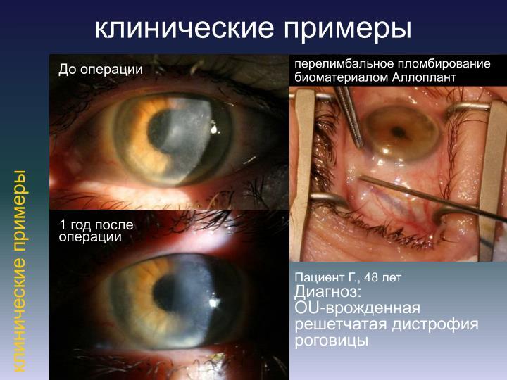 клинические примеры