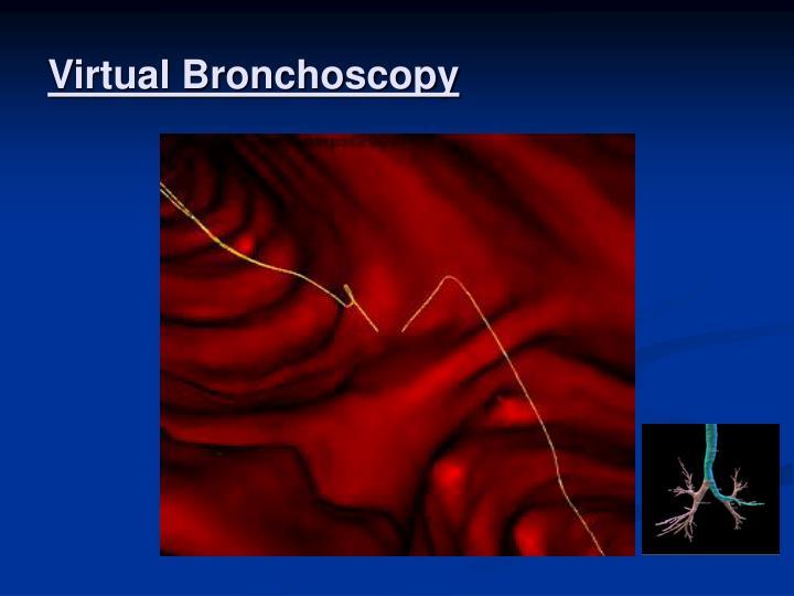 Virtual Bronchoscopy