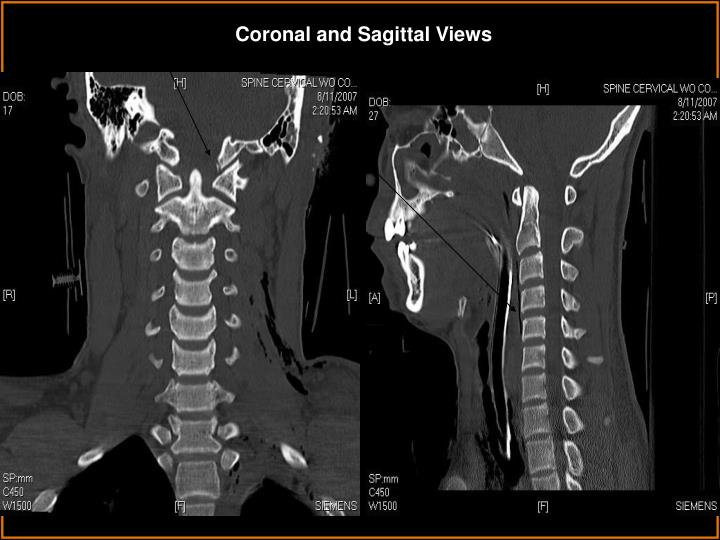 Coronal and Sagittal Views