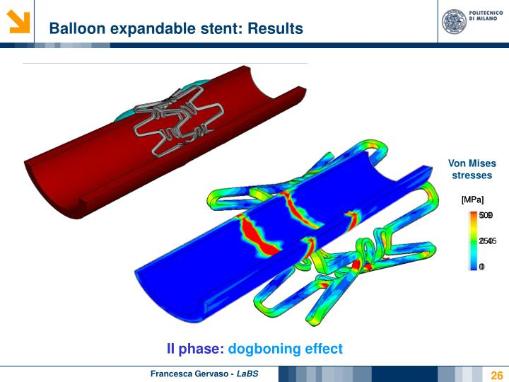 Balloon expandable stent: Results