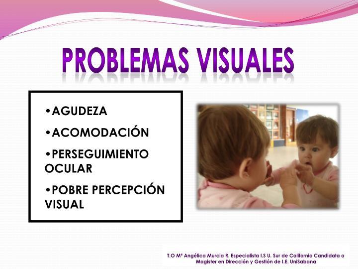 PROBLEMAS VISUALES