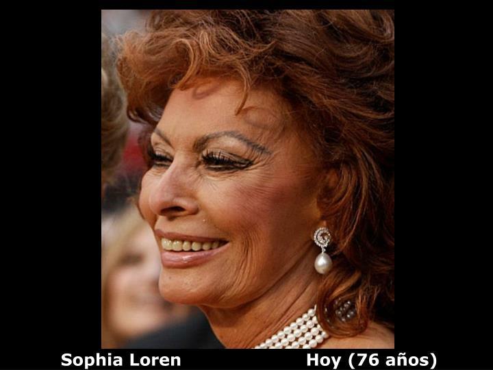 Sophia Loren                      Hoy (76 años)