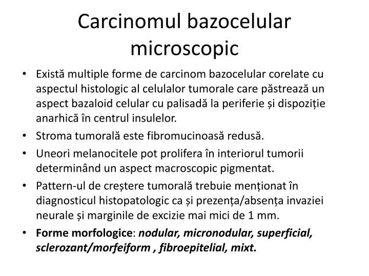 Carcinomul bazocelular