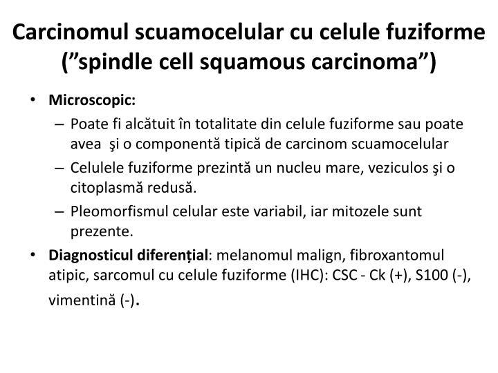 Carcinomul scuamocelular cu celule fuziforme