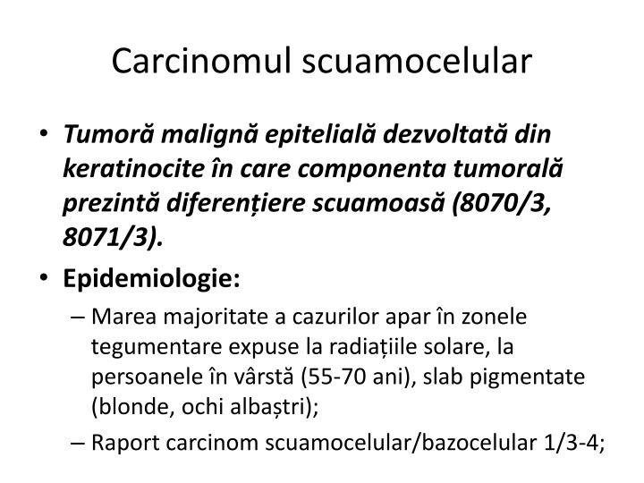 Carcinomul scuamocelular
