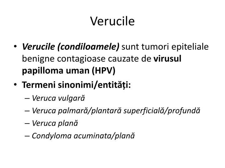 Verucile