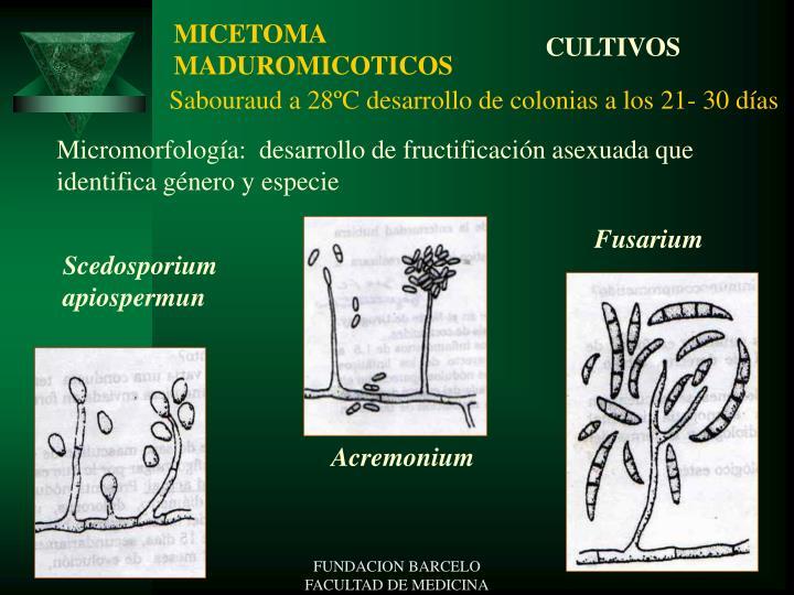 MICETOMA MADUROMICOTICOS